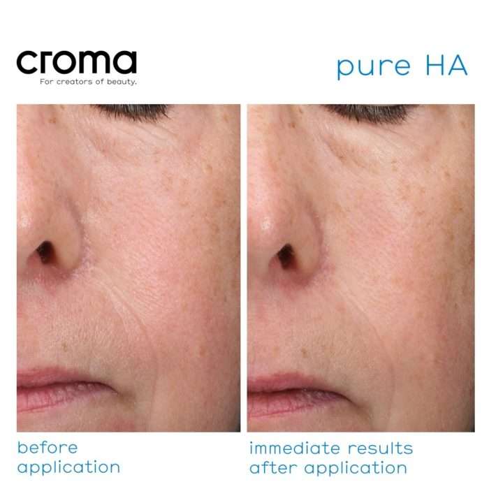 Croma Pure HA-gezichtsmasker met hyaluronzuur in zijn puurste vorm_resultaten voor en na gebruik